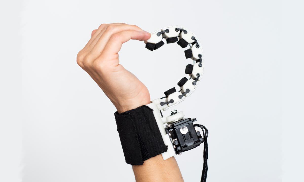 Sixto: il sesto dito in grado di ridare mobilità thumbnail